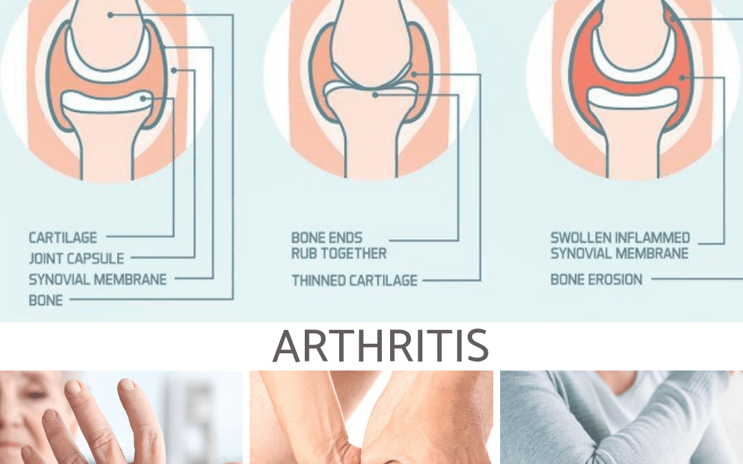 Treat Your Arthritis with a Whole Food Plant-Based Diet